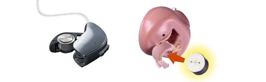 סוללות למכשירי שמיעה